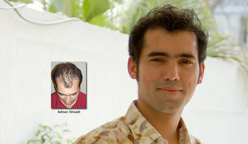 ILHT hair-transplant-results-Adnan by ilhtpaki