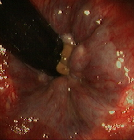 Rectum: Internal Hemorrhoid (#2) | Rectum | Endoscopic Images