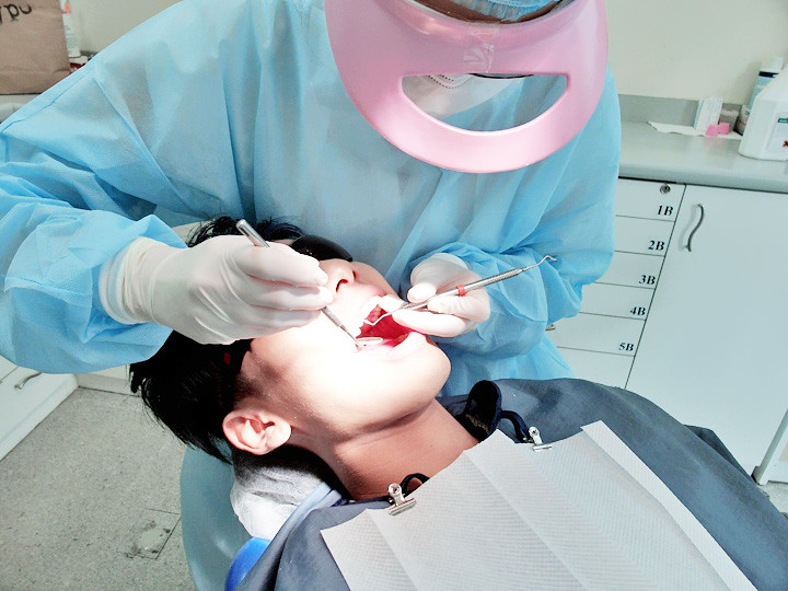 typicalben for teeth cleaning at omni dental centre