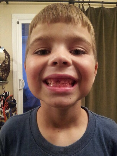 My son showing off his third lost tooth