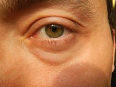 nose(0.0), chin(0.0), face(0.0), lip(0.0), head(0.0), eyelash extensions(0.0), human body(0.0), mouth(0.0), forehead(0.0), skin(1.0), eyelash(1.0), cheek(1.0), close-up(1.0), wrinkle(1.0), eyebrow(1.0), eye(1.0), organ(1.0),