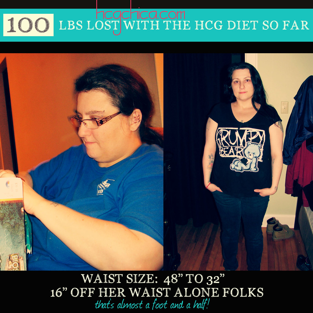 hcg-diet-reviews-results-before-after-100lbs-pin