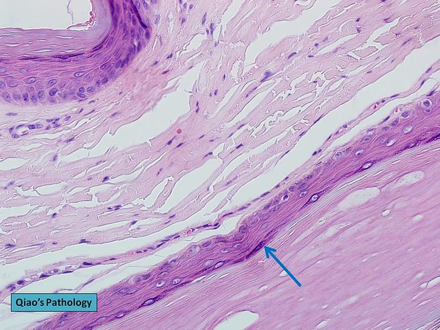 Inclusion and Epidermal Cysts of the Vulva - Womens