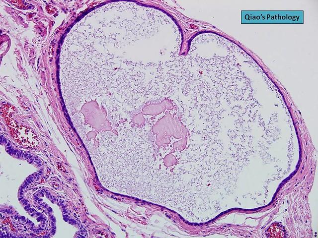 Qiao's Pathology: Cystic Walthard Cell Nest, Fallopian ...