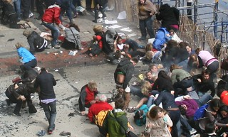 Boston Bombing Amputee Pile 5