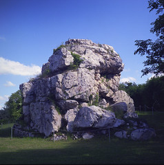 The largest kidney stone in the world