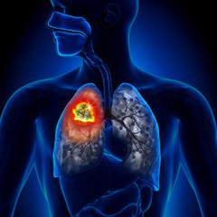 michigan mesothelioma lawyer