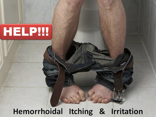 Hemorrhoids by hemorrhoidsx, on Flicker