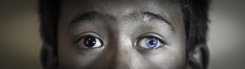 Heterochromia Closeup