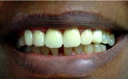 Laurel DE - Laurel Dental - Family Dentist After 1