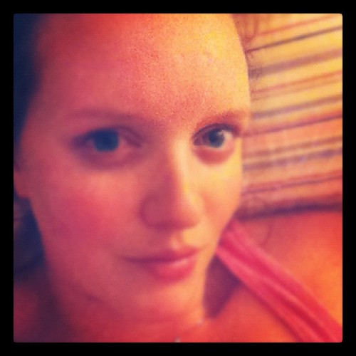 {Day 19} #imperfection forehead chickenpox scar {and, let's face it, wrinkles} #junephotoaday
