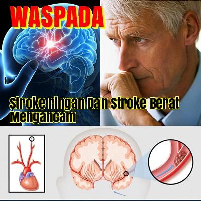 Obat Stroke Ringan dan Berat Paling Ampuh