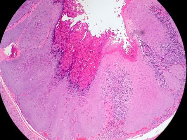 Molluscum contagiosum definition-8826