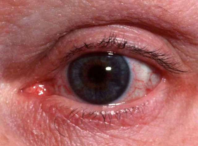 Ocular Rosacea Treatment & Management: Medical Care ...