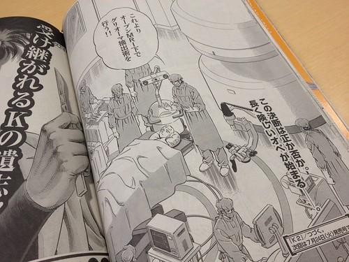 イブニング掲載の漫画「K2」にグリオーマのオープンMRI手術が登場