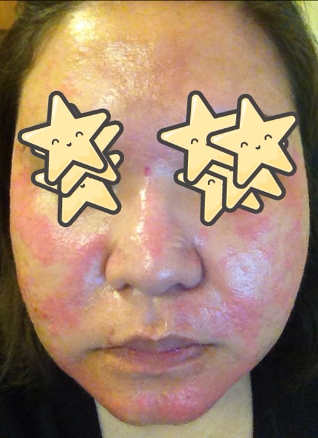 second course of accutane
