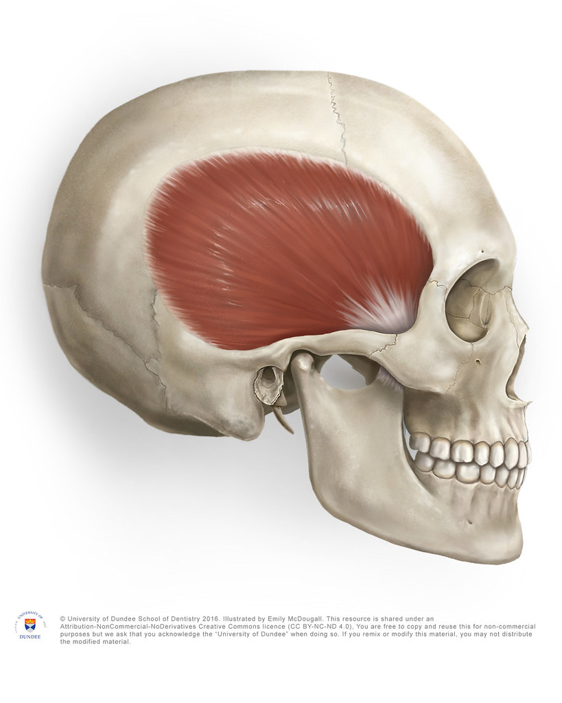 The Temporalis Muscle by Emily McDougall | Here is a ...
