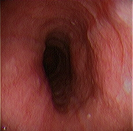 Normal Proximal Esophagus