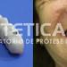 laboratorio_de_protese_dentaria_cad_cam-690