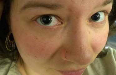 pupilledilattee