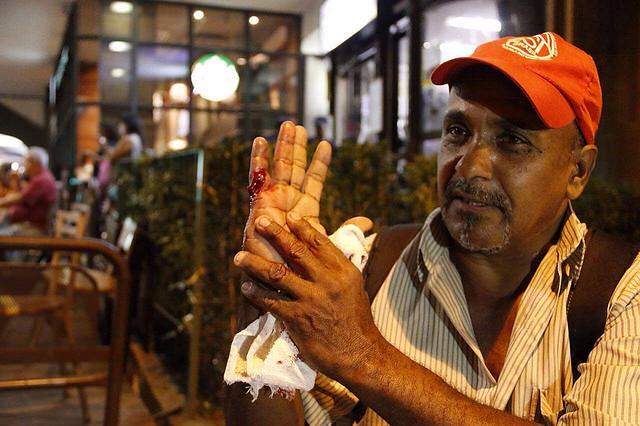 Militante del MTST es herido por el el estallido de una bomba en acto - Créditos: Foto: José Eduardo Bernardes/Brasil de Fato