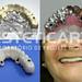 laboratorio_de_protese_dentaria_cad_cam-694