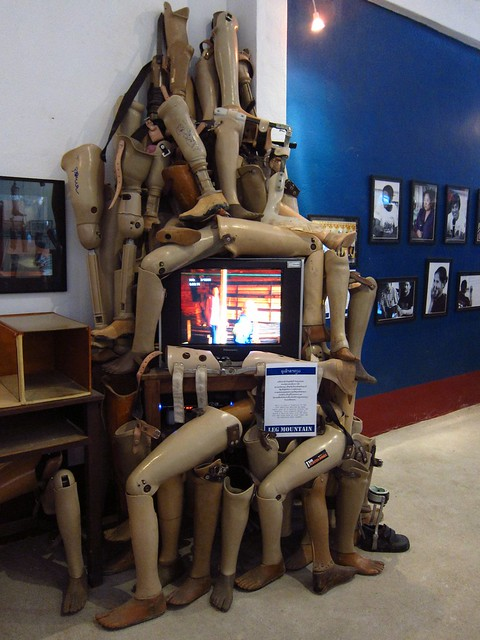 Prosthetic Limbs at the COPE Center