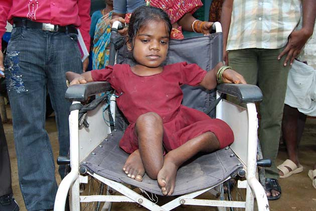 People in Nalgonda have been drinking water with high levels of fluoride for decades. It is common to see individuals with deformed bone structures. (Image: India Water Portal)