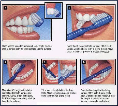 botox dental diagram dental diagram pdf