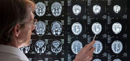 epilepsie aanval wat te doen