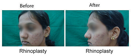 nose job surgery in bangalore