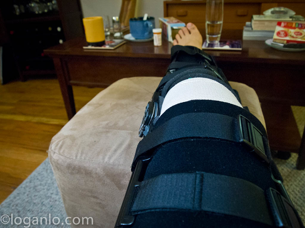 ACL injury in a leg brace