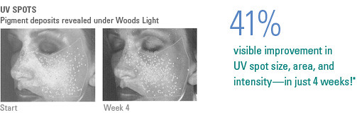 NEOVA DNA Total Repair skincare skin care sun damage