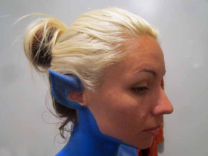 Ear Prosthetics