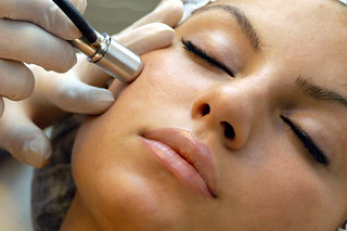Acne Laser Skin Treatment