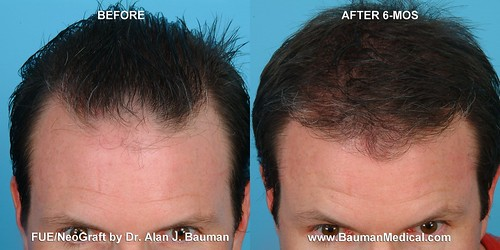 Rolston, Kevin  Before & 6 Months After NeoGraft FUE | by Dr_Alan_Bauman