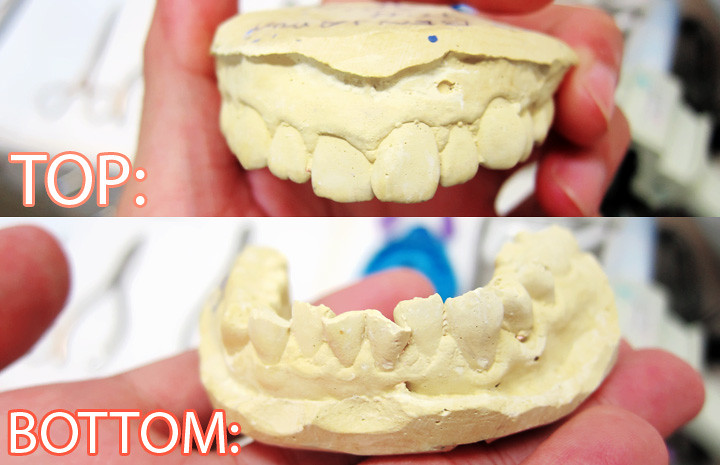 typicalben top and bottom teeth mold initially before invisalign