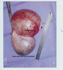 Ovarian cysts, fallopian tube