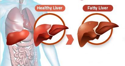 Cara Mengobati Fatty Liver Secara Alami