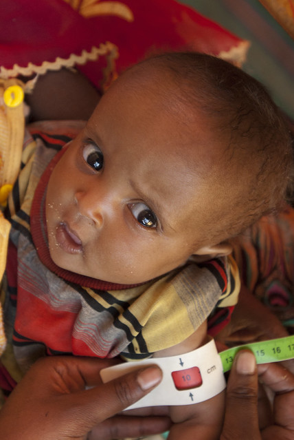 Ten month old Hanan Mohammed Ibrahim has her mid upper arm circumference measured