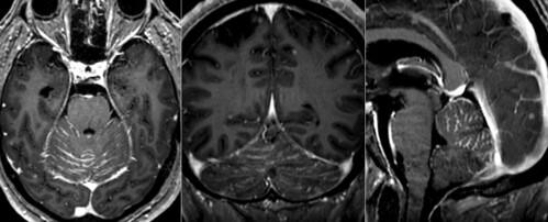 Carcinomatosis meníngea