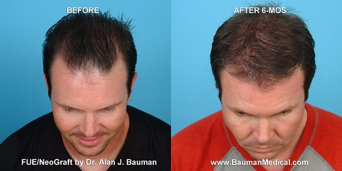 Rolston, Kevin Before & 6 Months After NeoGraft FUE