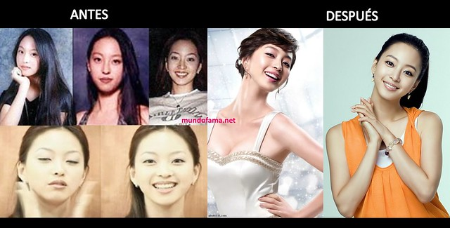 KOREAN ACTRESS BEFORE AND AFTER PLASTIC SURGERY ACTRICES COREANAS CON CIRUGIA PLASTICA (12)