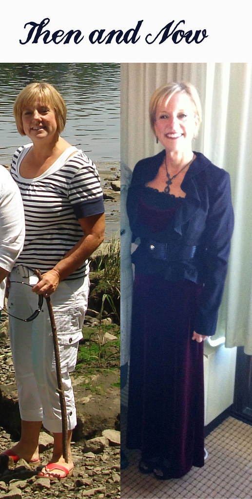 before-after-hcg-diet-results