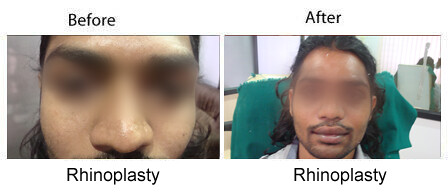 rhinoplasty surgeon in india