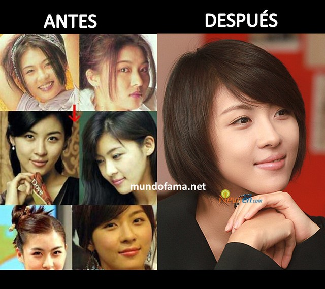 KOREAN ACTRESS BEFORE AND AFTER PLASTIC SURGERY ACTRICES COREANAS CON CIRUGIA PLASTICA (15)