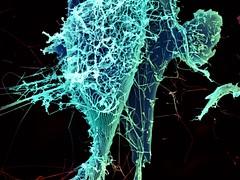 Ebola Virus Particles