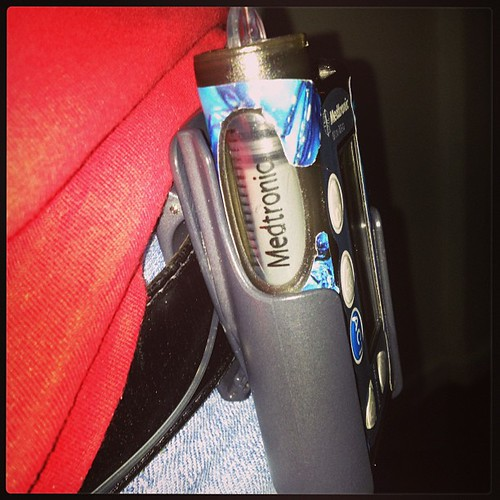 Esto explica una glicemia de 305 mg/dL. El catéter estaba siendo obstruido por el clip con el que llevo la bomba en el cinturón, impidiendo el paso de la insulina casi en su totalidad. #diabetes #type1 #tipo1 #problemasdeladiabetes #diabetestruobles #bomb