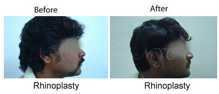nose reshaping surgery in bangalore