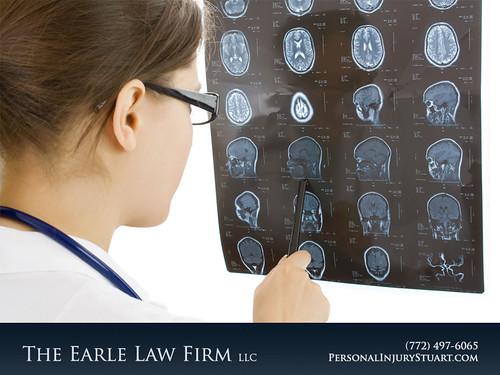Medical negligence Brain Spinal Cord Damage Lawyer Stuart FL